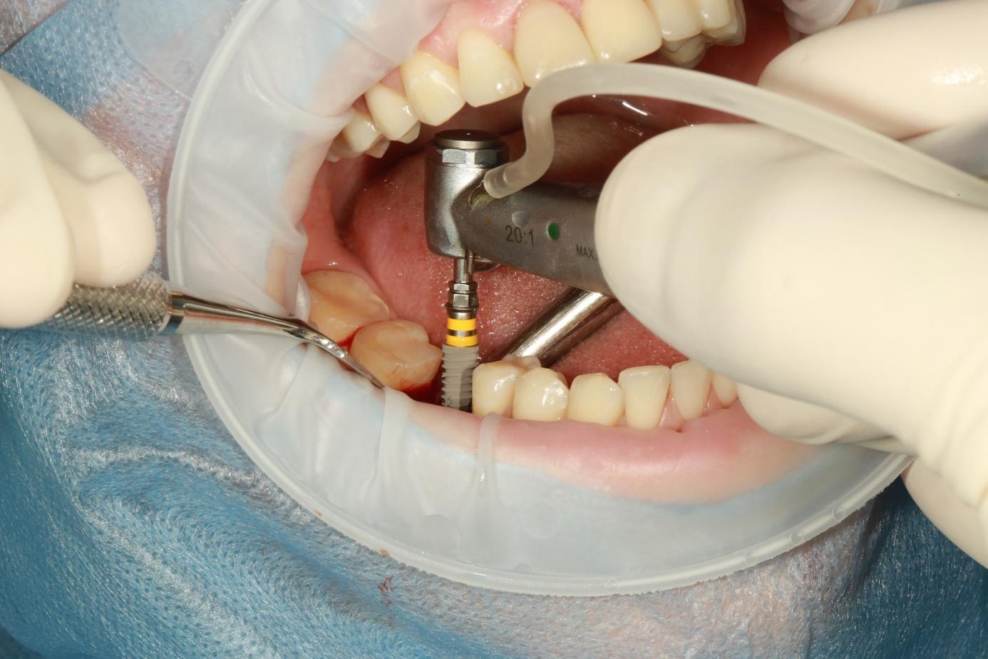 Înlocuirea dinților cu un implant dentar